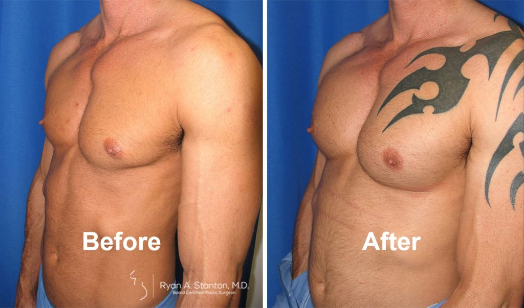 before and after pectoral implants on male patient