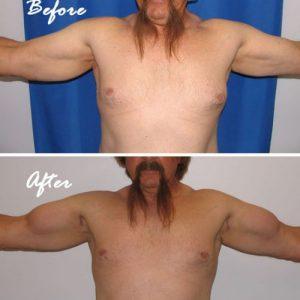 biceps implants case 1