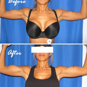 before and after bicep implants on female patient