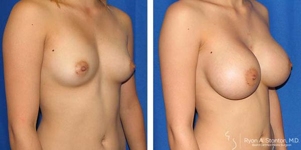 breast implants before and after images