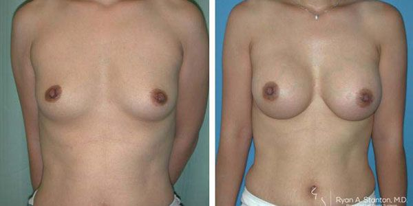 breast augmentation front view