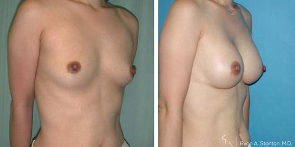 before and after breast aug female patient