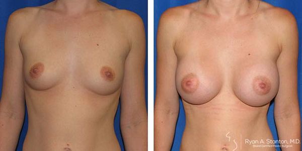 breast implants before and after