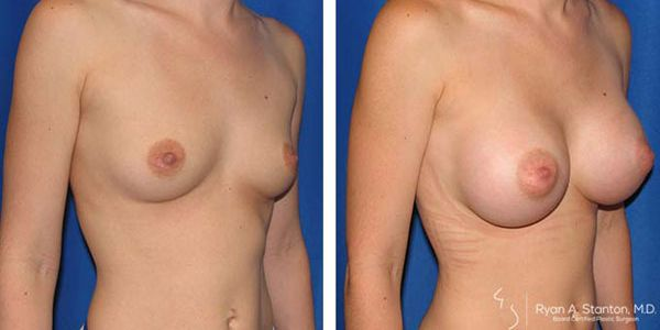 right oblique view before and after breast augmentation