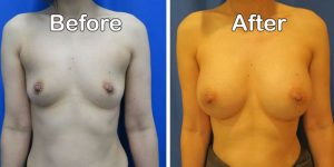 front view breast augmentation before and after