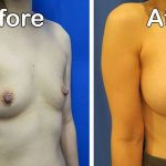 right front oblique view of breast augmentation