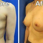 left front oblique view breast aug