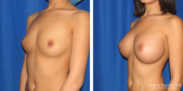 left oblique view of breast augmentation