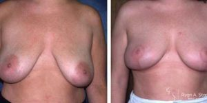 breast ptosis corrected with a breast lift
