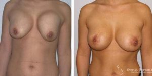 reshaped breasts after breast lift