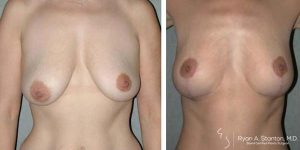 before and after breast lift procedure