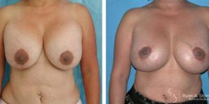 mastopexy before and after images of patient