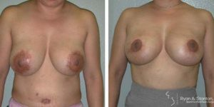 before and after mastopexy