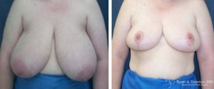 breast reduction case 6 before and after