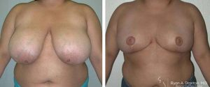 smaller breasts after breast reduction