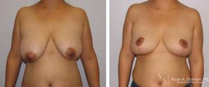 front view of breast reduction results