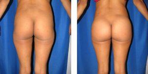 rear view of butt augmentation