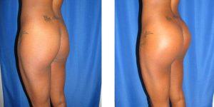 left rear oblique view butt augmentation
