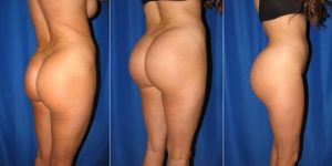 before and after butt lift - female patient