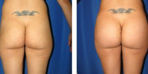 rear view before and after butt augmentation