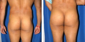 before and after male buttock augmentation rear view