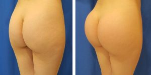 buttock implants before and after