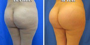 buttock enhancement surgery
