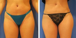 buttock enhancement before and after