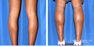 rear view of calf augmentation case 6