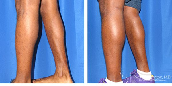 side view of calf augmentation case 6