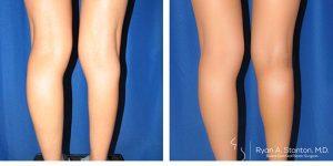 rear view of calf augmentation case 5