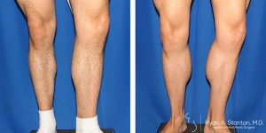 before and after male calf augmentation front view