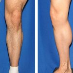 before and after male calf augmentation front and side views
