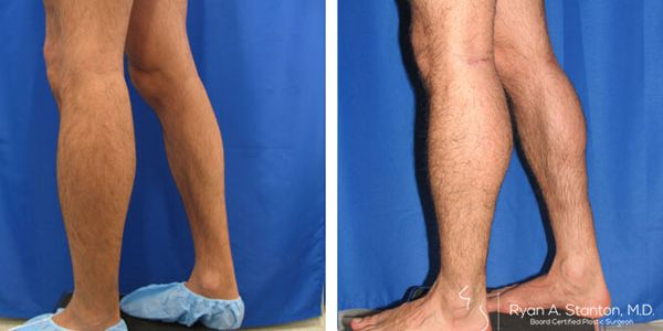 case 2 calf implant before and after