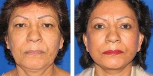 facelift case 6 female patient