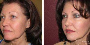 Left oblique view female facelift results