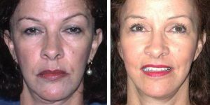 female facelift before and after