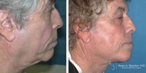 profile view of male patient before and after facelift