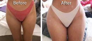 before and after cosmetic hip augmentation