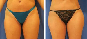 hip augmentation before and after case 4