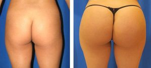 rounder butt and hip shape after hip augmentation