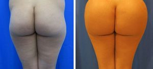 before and after Hip Implants Case 863