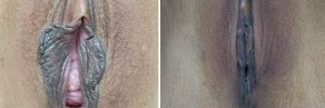labiaplasty case 5 before and after