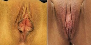 before and after labiaplasty case 2