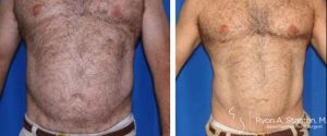 male liposuction midsection and abdomen before and after