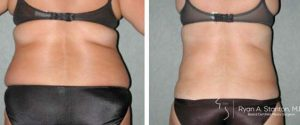 waist and flank liposuction before and after