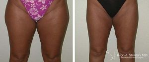 slimmer thighs after liposuction