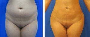 liposuction on midsection before and after
