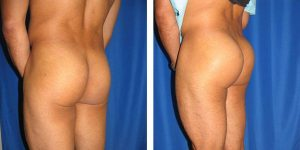 male buttock implant left rear oblique
