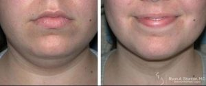 defined chin after necklift